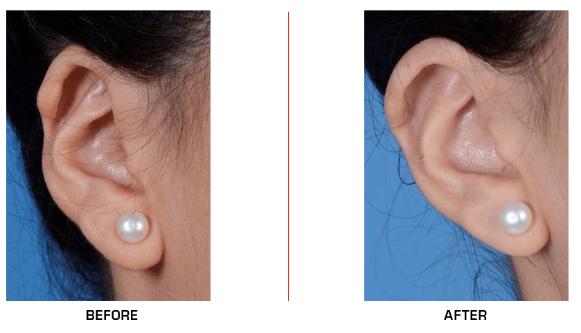 Ear Reconstruction before after case2