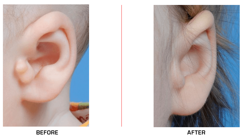 Ear Reconstruction before after case3