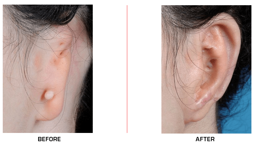 Ear Reconstruction before after case4
