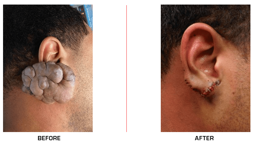 Ear Reconstruction before after case5