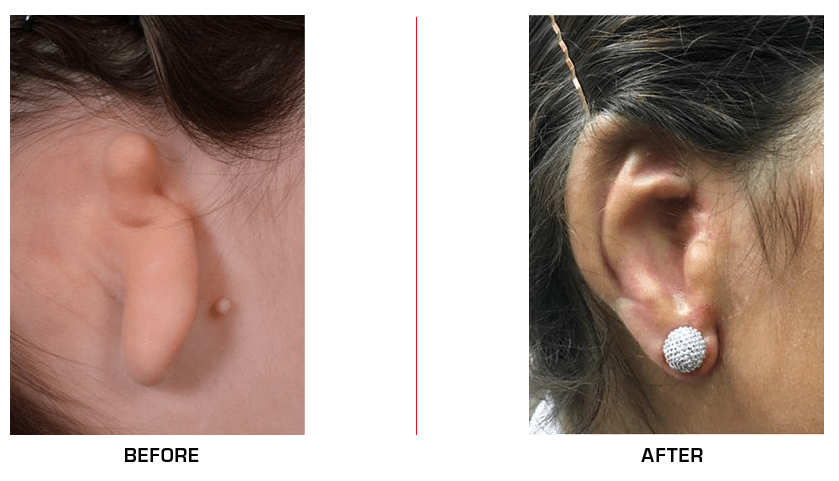 Ear Reconstruction before after case6