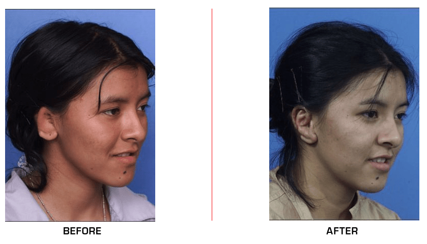 Ear Reconstruction before after case7
