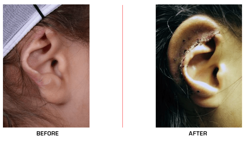 Ear Reconstruction before after case8