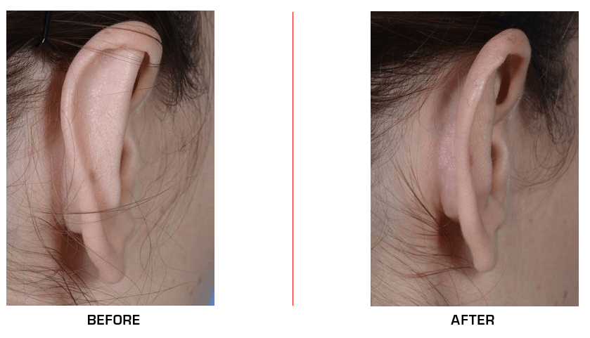 otoplasty before after case2