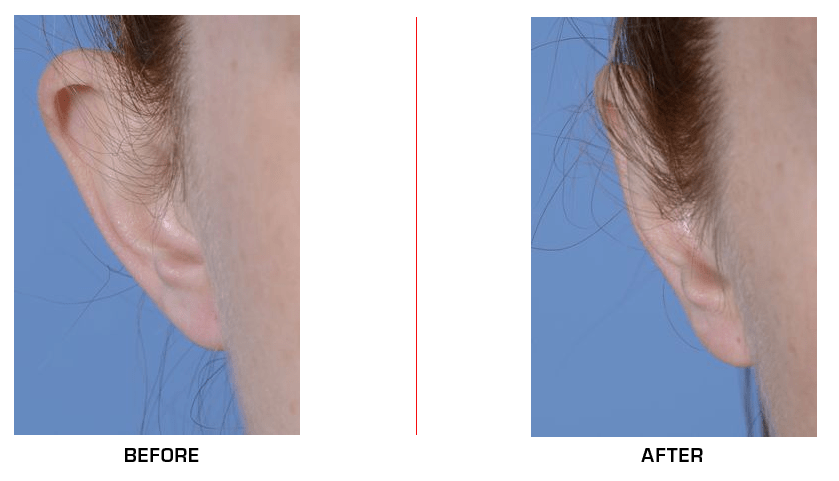 otoplasty before after case5